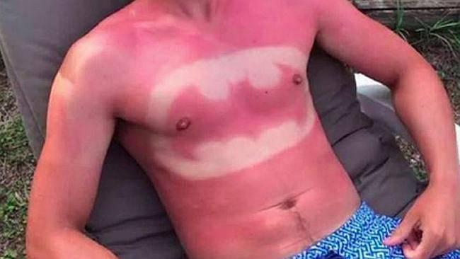 sunburnart