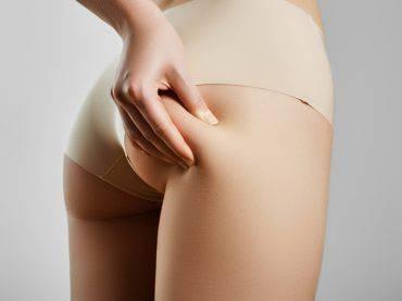 cellulite-eliminare-dieta-esercizi