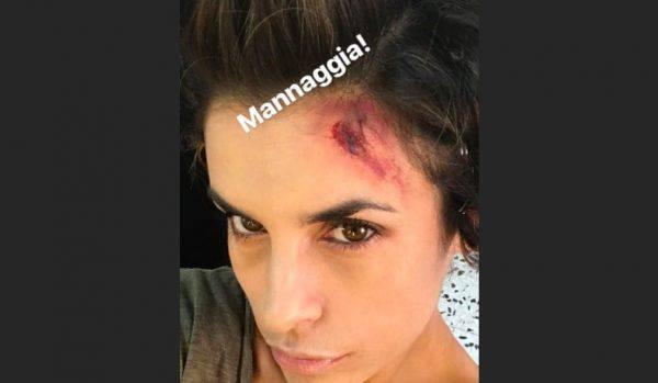 Elisabetta Canalis ferita alla testa, cosa è successo