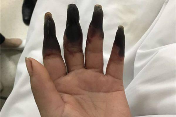 Ferita gravemente durante i lavori di casa
