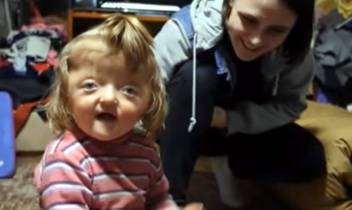 bambina con malformazione