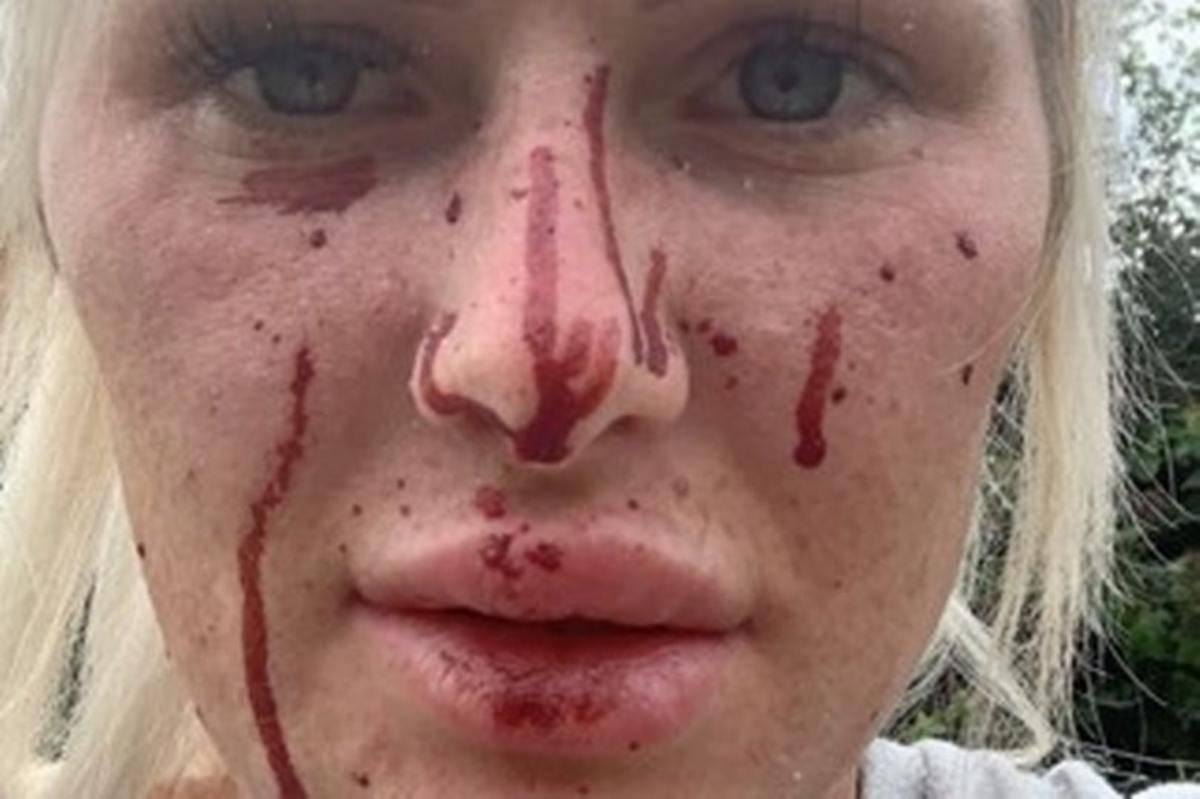 incidente ragazza ferita