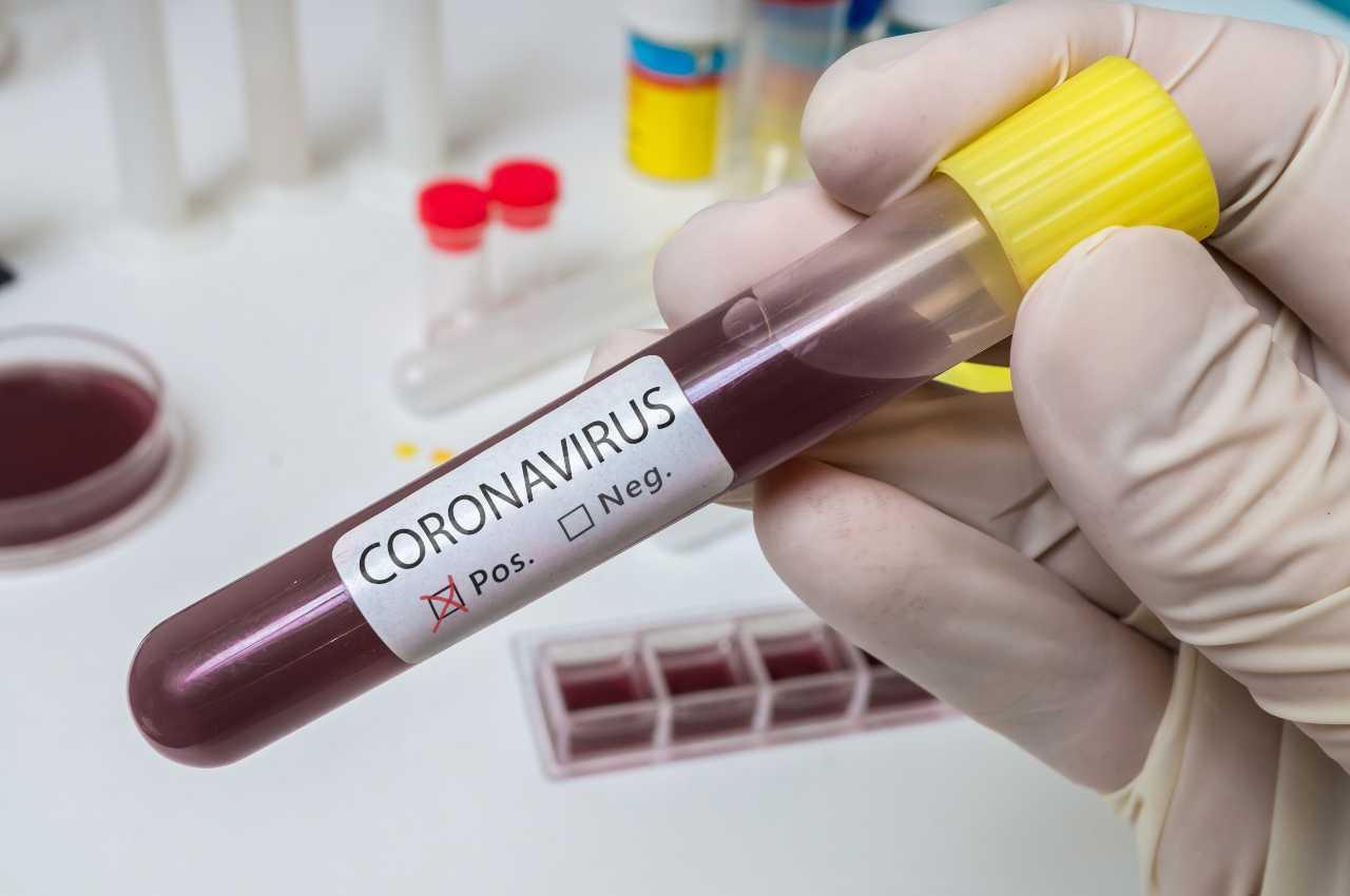 coronavirus trasmissione malattia