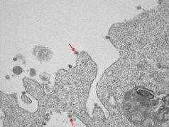 Coronavirus, ecco le prime foto del virus isolato in Lombard