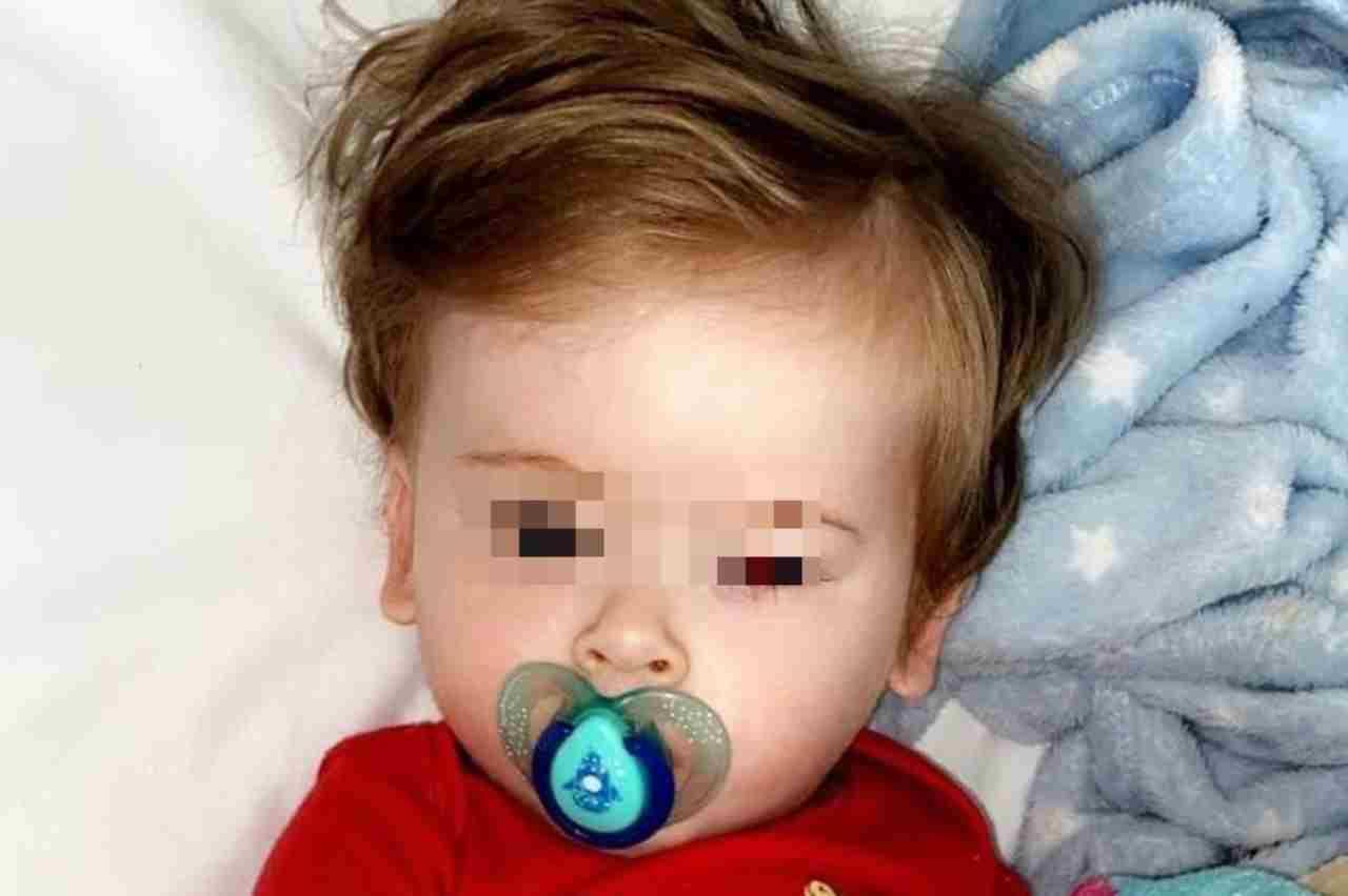 bambino leucemia