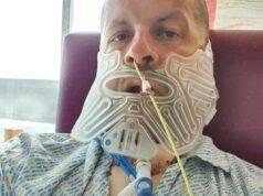Uomo evita il dentista per 27 anni, gli asportano la mascell