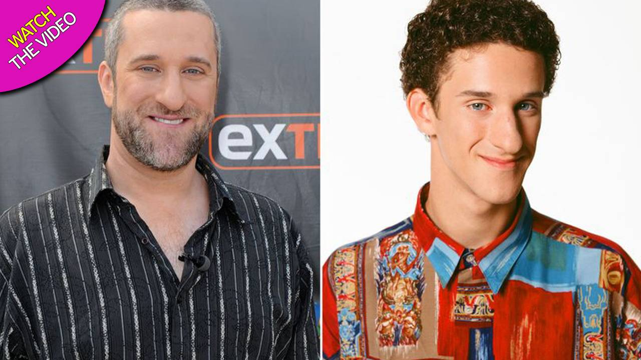 Morto Dustin Diamond, addio al mitico Screech di Bayside School