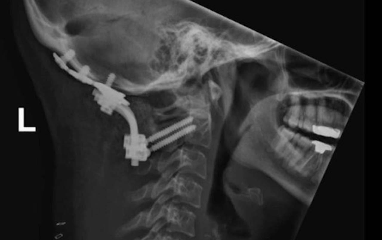 instabilità cranio-cervicale