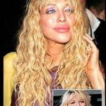 botox courtney love